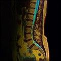 Lumbosacral MRI case 12 10.jpg
