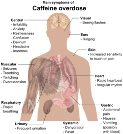 Torso of a young man with overlaid text of main side-effects of caffeine overdose.