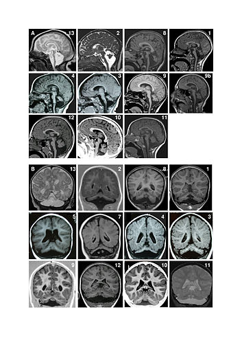 23 examples of Magnetic resonance imaging