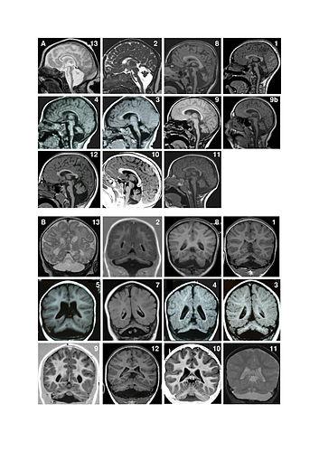 Pontocerebellar hypoplasia - Wikipedia