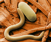 Soybean cyst nematode and egg SEM.jpg