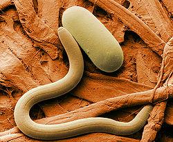 паразиты у человека в организме