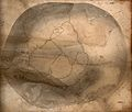 The deformed skull of James Cardinal as viewed from above. D Wellcome V0009801.jpg