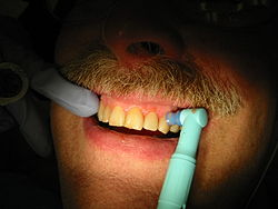 Dentist spotter will help find a dentist that will clean up like this