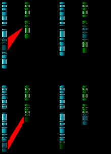 Chromosome Abnormality Wikipedia