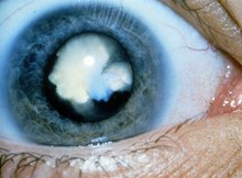 Congenital Cataract Wikipedia