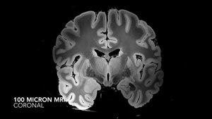 File:7 Tesla MRI of the ex vivo human brain at 100 micron resolution (axial, coronal, sagittal and descriptive summary).webm