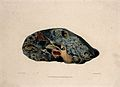 A diseased lung. Coloured mezzotint by W. Say after F. R. Sa Wellcome V0009755.jpg