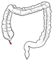 Anatomy-human-appendix-in-colon.png