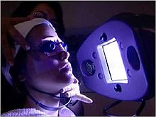 Blue Light acne phototherapy iClear.jpg