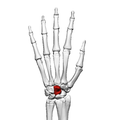 Capitate bone (left hand) 02 dorsal view.png