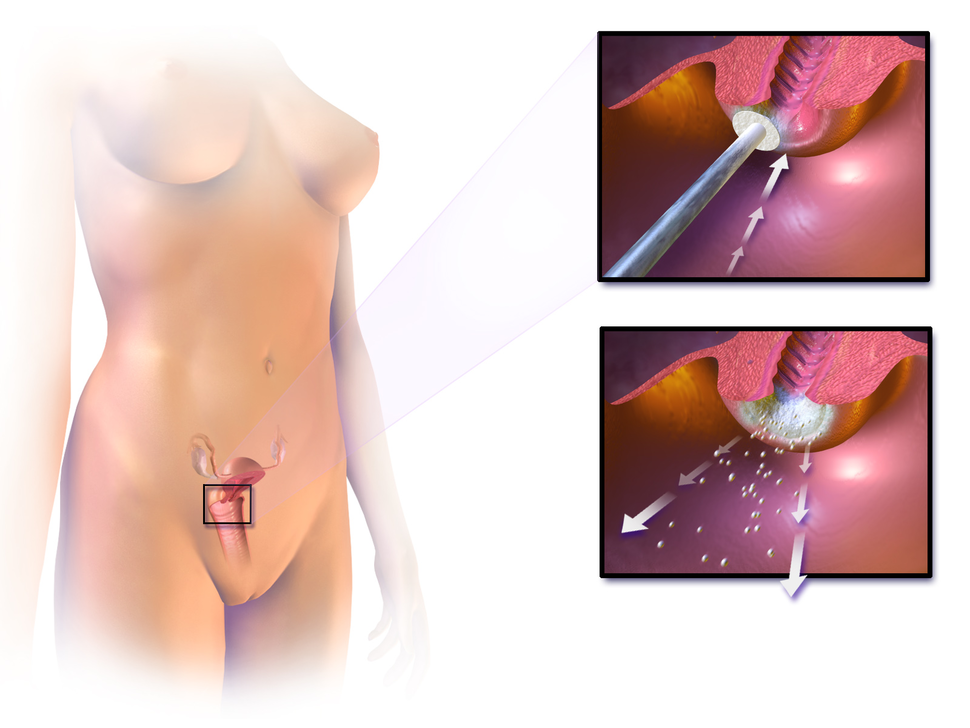 Cervical Cryotherapy