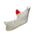 Coronoid process of mandible - close up - lateral view.png