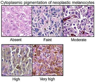 Cytoplasmic pigmentation of neoplastic melanocytes.jpg