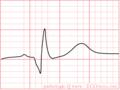 De-PathoQ (CardioNetworks ECGpedia).png