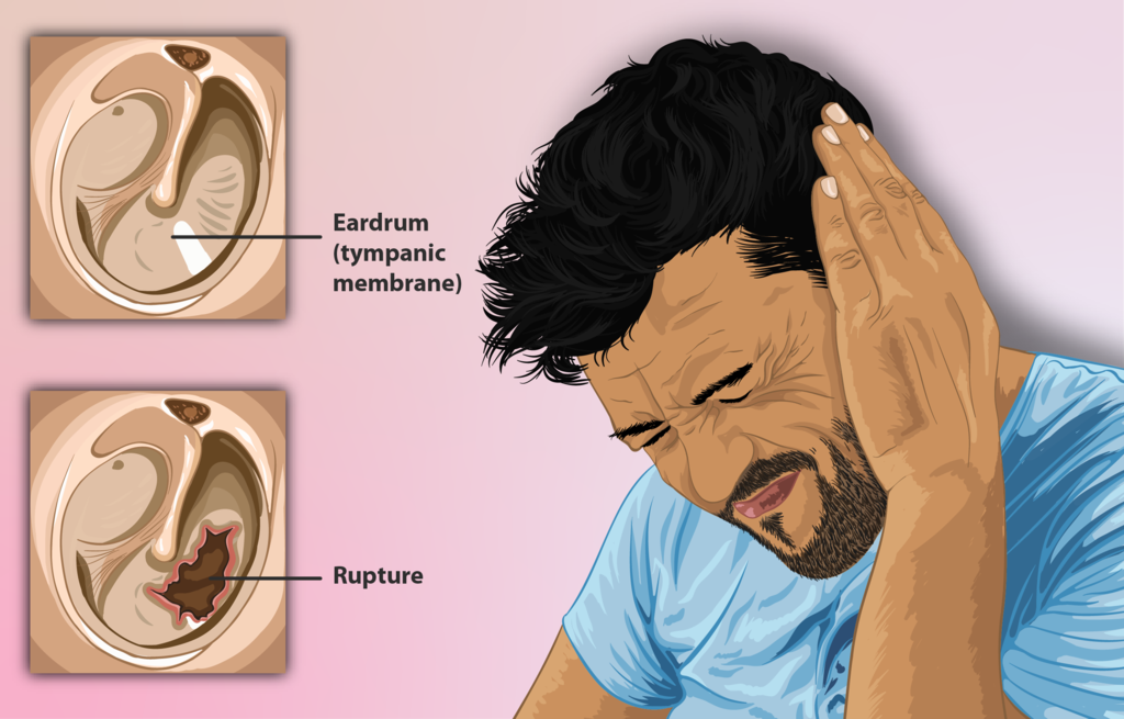 Depiction of a man with a ruptured or perforated eardrum