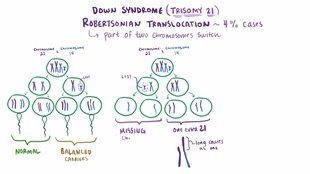 ملف:Down syndrome video.webm