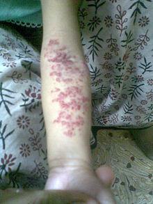 Hemangioma - Wikipedia