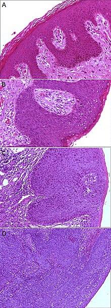 Epithelial Dysplasia - Wikipedia-7965