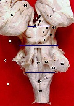 Human brainstem-thalamus posterior view description.JPG