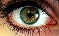 Iris centralheterochromy.jpg