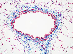 Masson's trichrome stain - Masson's trichrome stain of rat airway.  Connective tissue is stained blue, nuclei are stained dark red/purple, and cytoplasm is stained red/pink.
