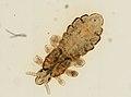 Pediculus humanus (YPM IZ 093576).jpeg