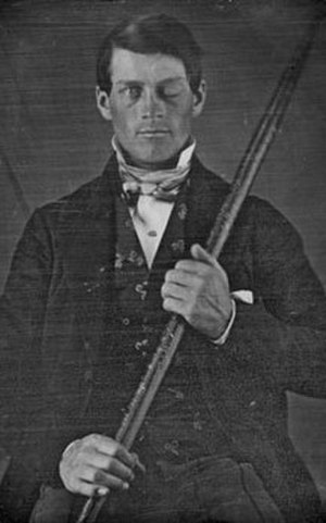 Duane Barry - Part of the episode was inspired by the true story of Phineas Gage.