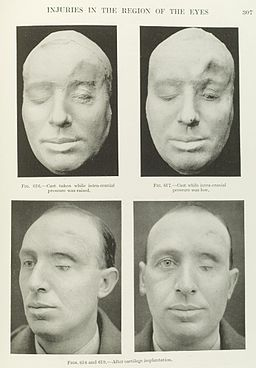 Plastic surgery to the face for injuries around the eyes Wellcome L0050372