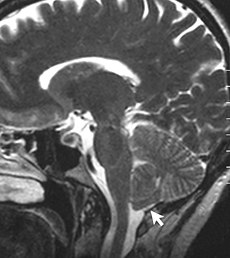 Sagittal MRI scan of brain of patient with Chiari malformation.jpg