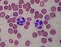 Segmented neutrophils.jpg