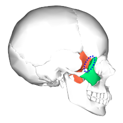 Sphenoid bone and zygomatic bone - lateral view4.png