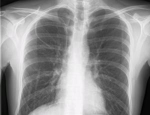 intubation et infection pulmonaire pdf