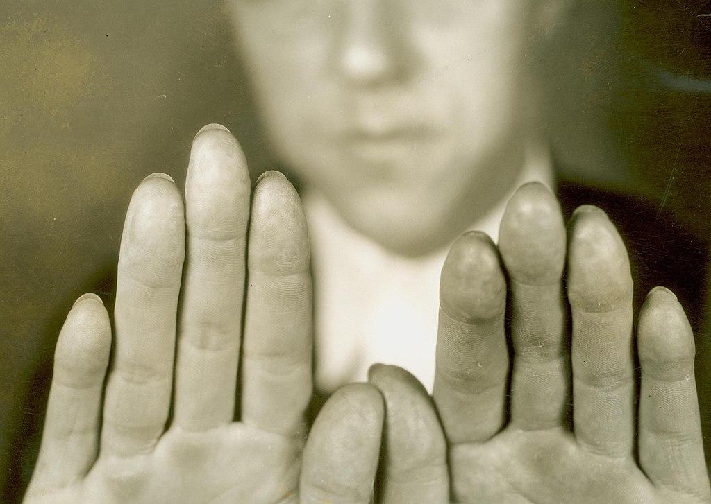 Altered Fingerprints of Alvin Karpis