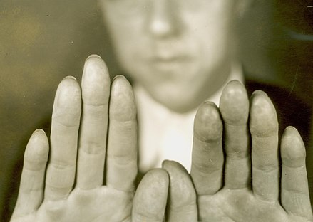 Criminal Alvin Karpis had his fingerprints surgically removed in 1933 Altered Fingerprints of Alvin Karpis.jpg