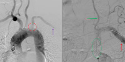 Angiogram of Left Subclavian Steal Syndrome.PNG