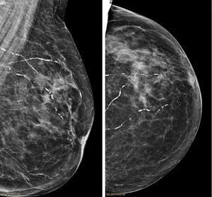 Arteriolosclerosis mammography.png