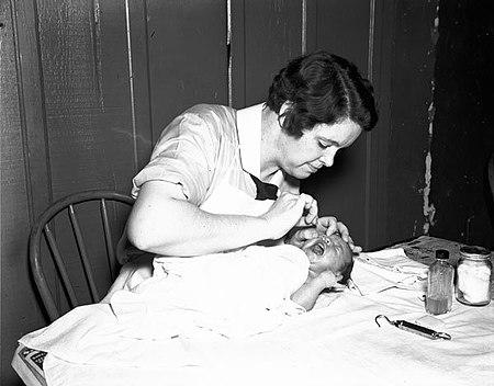 Baby eyedrops NOLA 1936.jpg