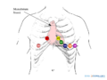De-Chest leads (CardioNetworks ECGpedia).png
