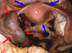 Ectopic pregnancy on laparoscopy.png