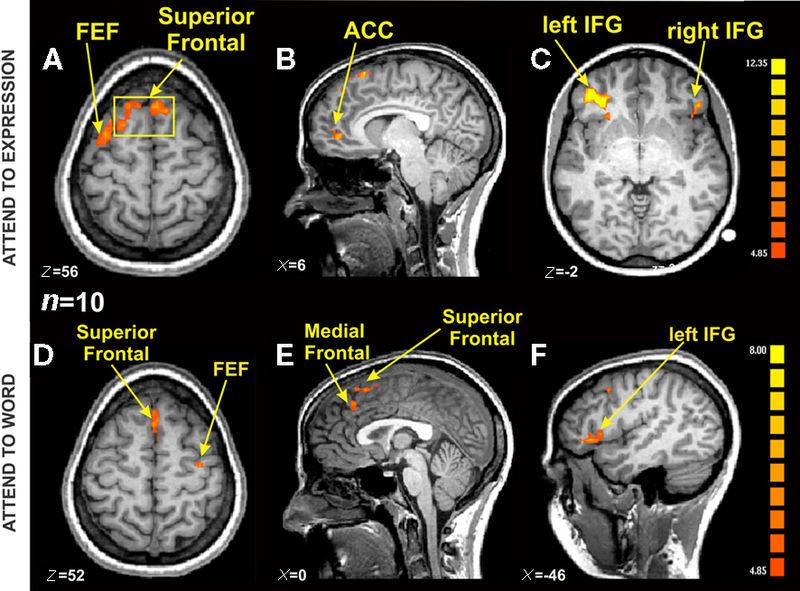 File:FMRI BOLD activation in an emotional Stroop task.jpg