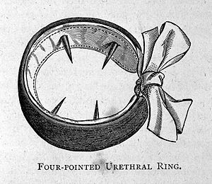 Four-pointed urethral ring for the treatment of Wellcome L0003903.jpg