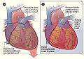 Heart transplant NIH.jpg