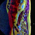 LSV MRI spondylolisthesis T1W T2W STIR 01.jpg