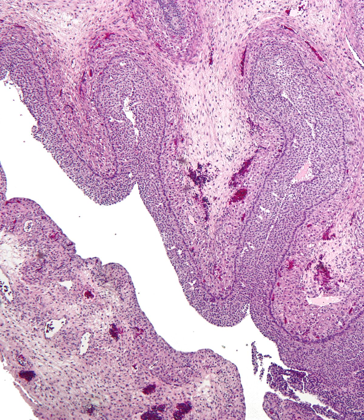 Follicular Cyst Of Ovary Wikipedia