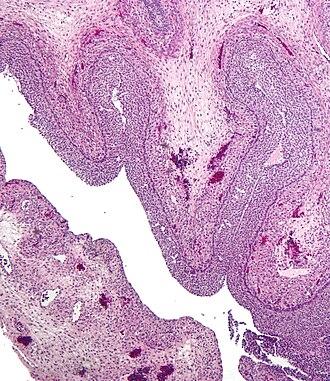 Corpus luteum - Image: Luteinized follicular cyst
