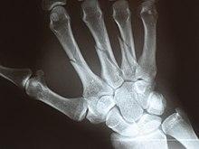 varrásos fájdalom a kéz ízületeiben