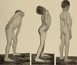 Nervous and mental diseases (1908) (14775871594).jpg