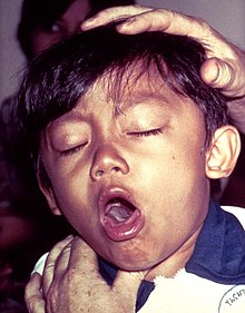 young boy coughing due to pertussis causing whooping cough .