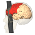 Phineas Gage injury - lateral view (frontal lobe).png